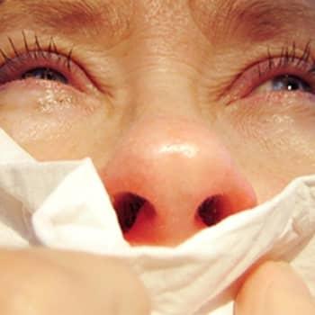 Tiedetiistai: Allergiailta