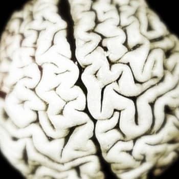Kohdentamalla tehoa aivokasvaimen hoitoon