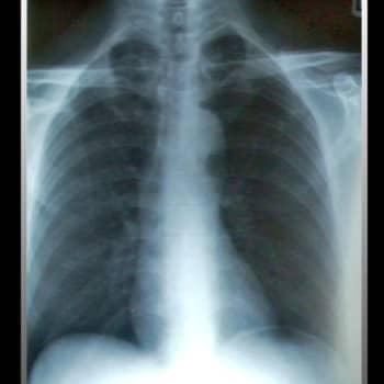 Kultakuume: Lapsuus tuberkuloosin varjossa