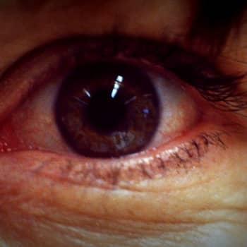 Voiko aivosairauden diagnosoida silmien kautta?