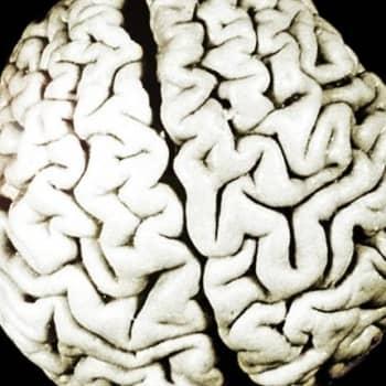 Edistysaskel aivoaneurysmien hoidossa