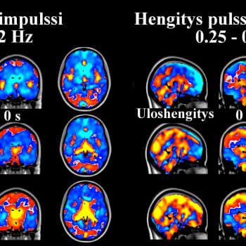 Aivojen viemärijärjestelmä – aivot puhdistuvat unessa