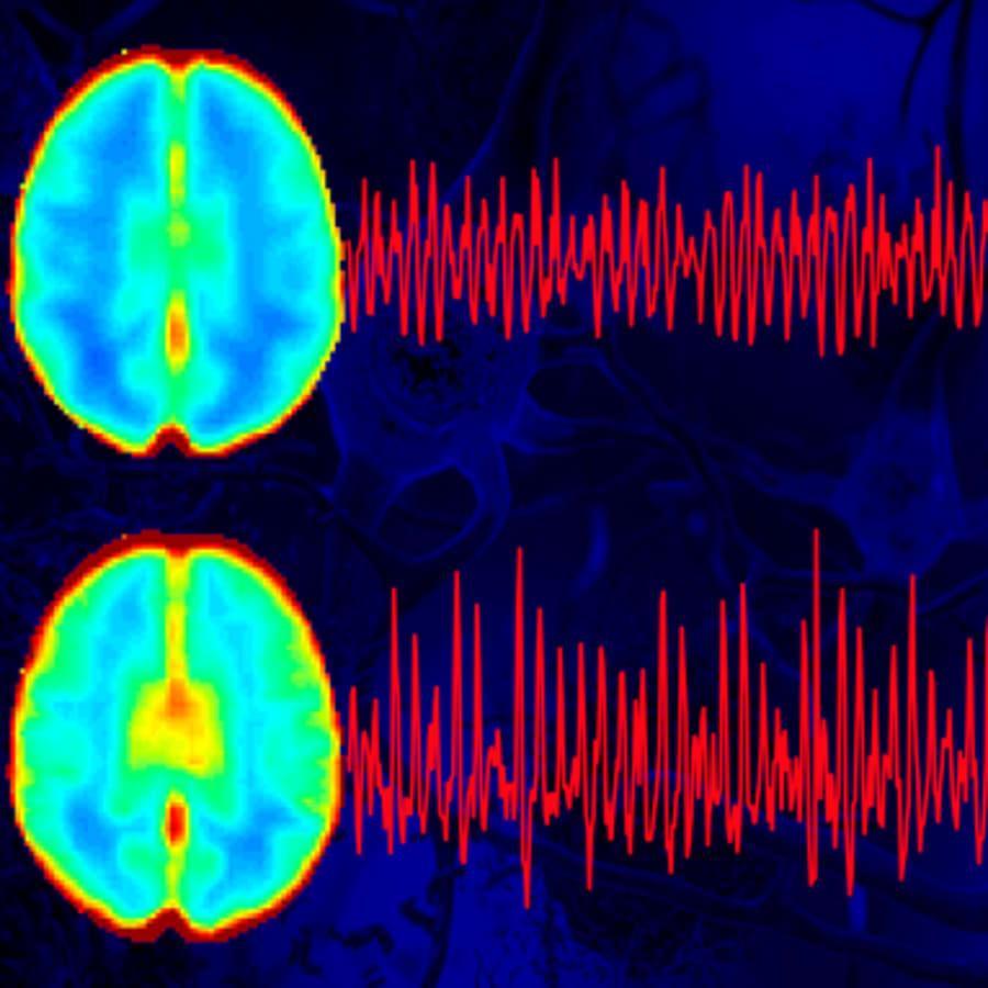 Aivojen puhdistuminen lisääntyy unessa. Mitä tapahtuu, jos aivoihin jää kuona-aineita?