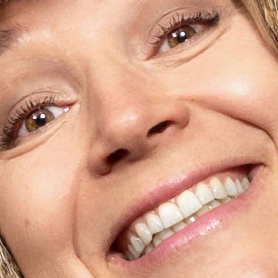 Esteettinen hammashoito: turhamaisuutta vai terveydenhoitoa?