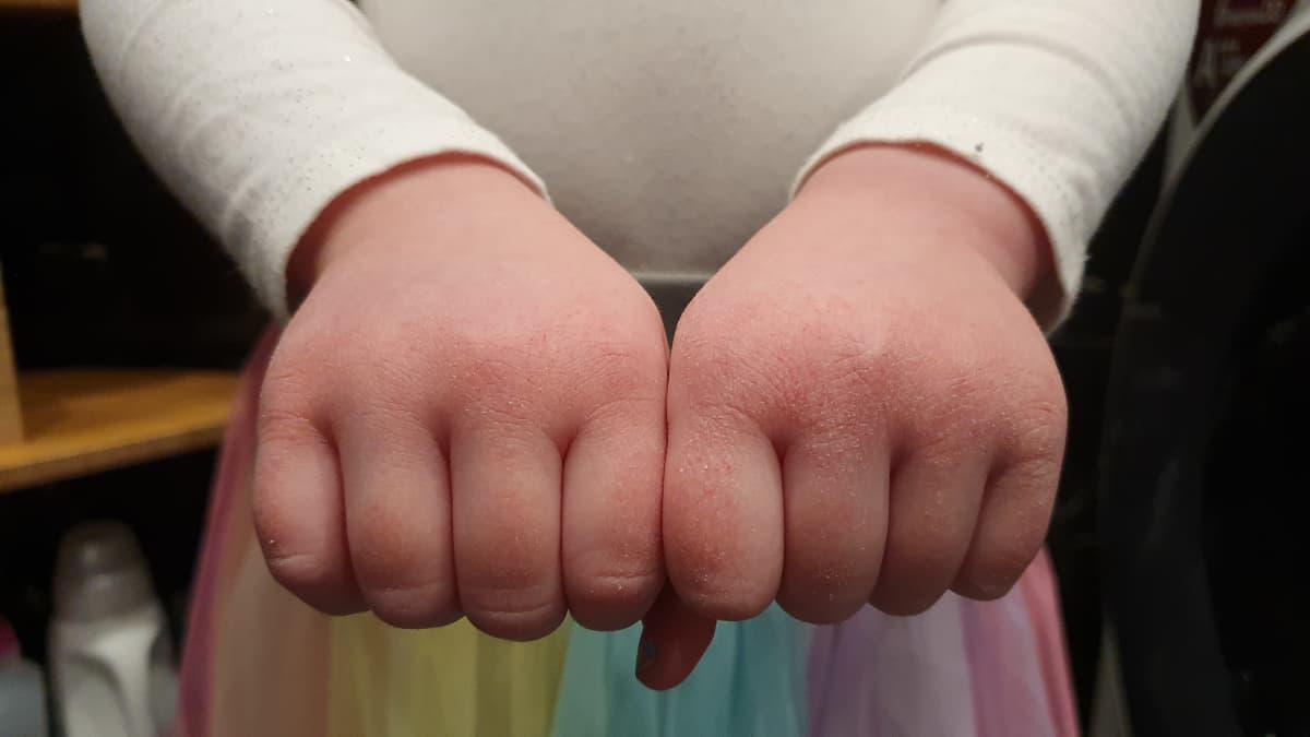 Lapsen kuivat kädet nyrkissä ojennettuna eteenpäin lähikuvassa.