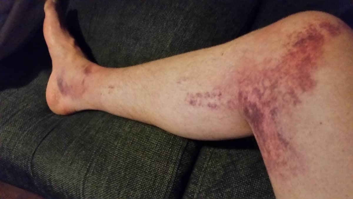 Sami Vainikan jalka onnettomuuden jälkeen.