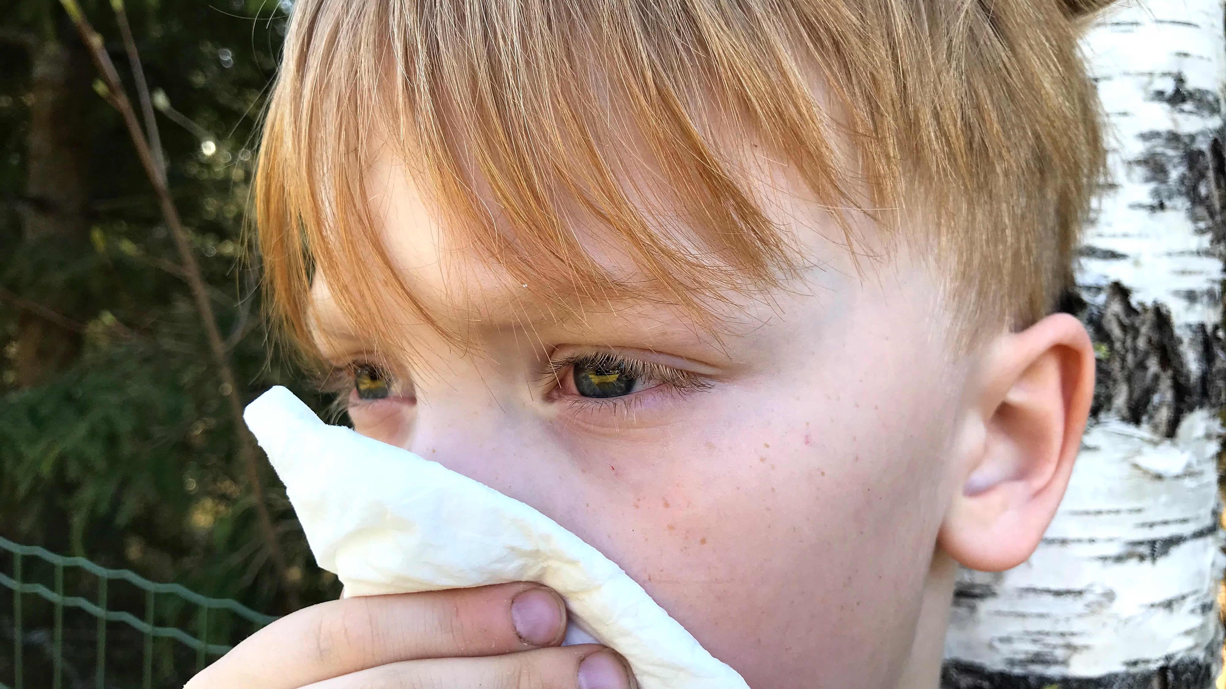 Koivun siitepölylle allerginen lapsi niistää nenäänsä ulkona.