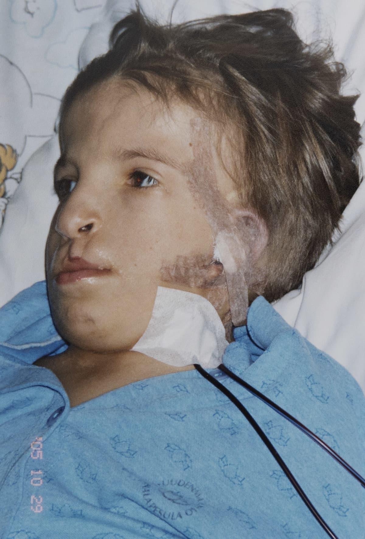 Jasmin Pyykkö leikkauksen jälkeen sairaalassa.