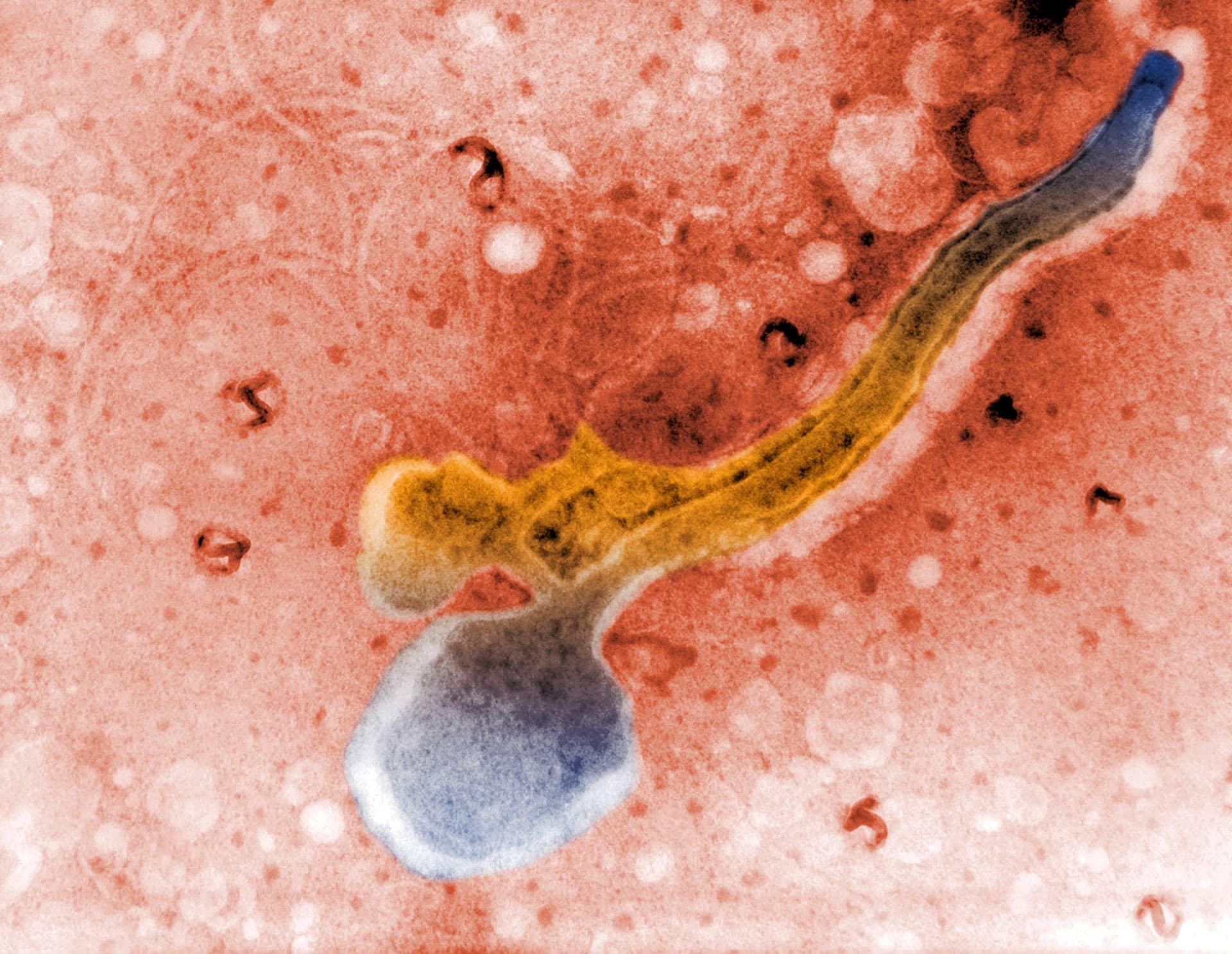 Mikroskooppikuva Treponema pallidum -bakteerista.