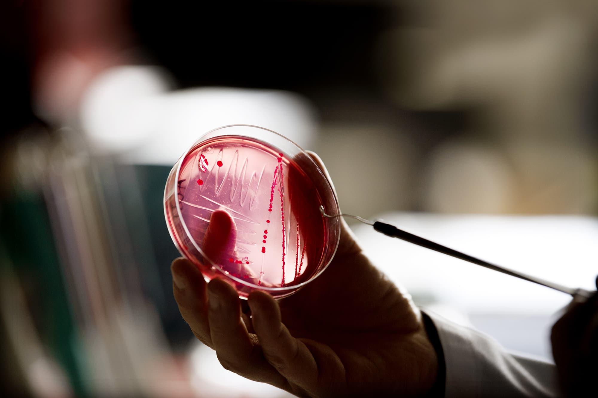 Bakteereja laboratorion viljelyastiassa.