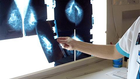 Lääkäri tutkii mammografia-kuvia.