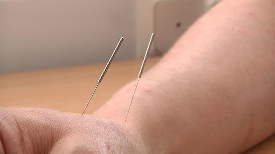 Kaksi akupuntioneulaa kämmensyrjässä.