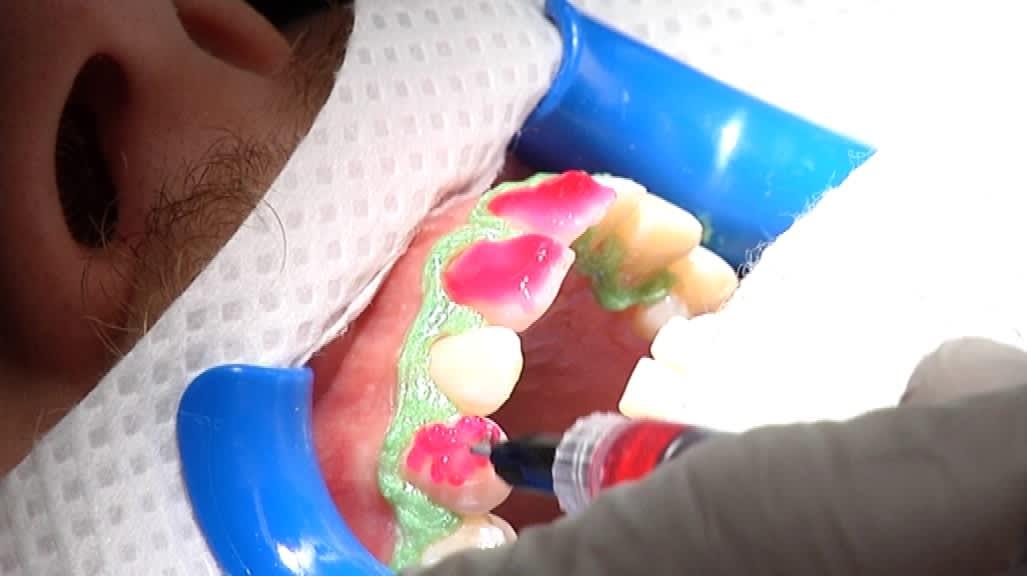 Hampaisiin levitetään valkaisuainetta