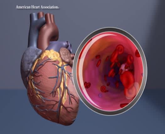 Piirroskuva sydämestä ja verisuonesta suurennoksena.
