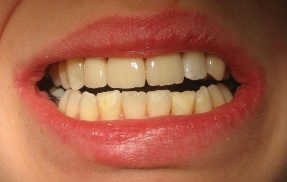 håller tand för tunga