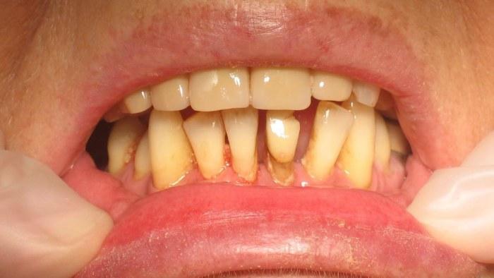 tandsten under tandköttet