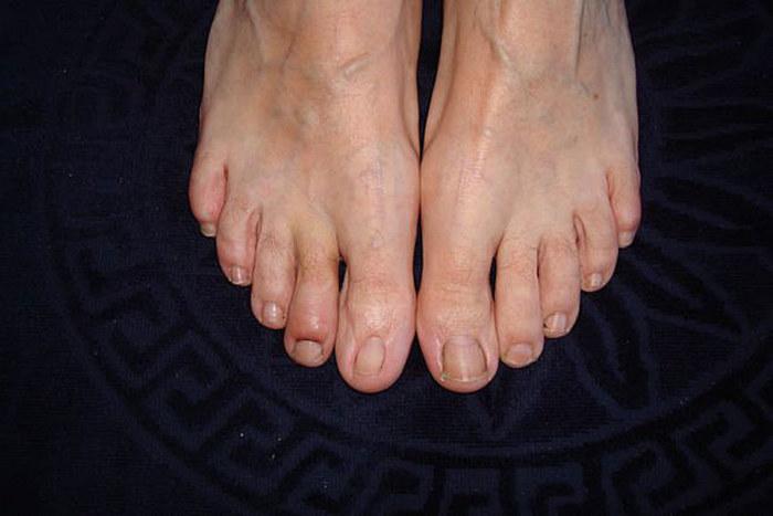 inflammation i tån
