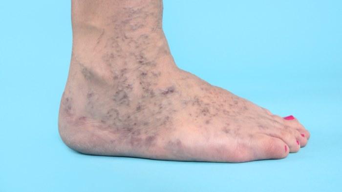 tumör i benet symptom