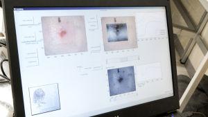 Tietokoneen näytöllä kuvia ihomuutoksista.