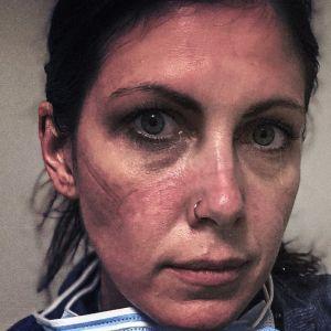 Sairaanhoitaja katsoo suoraan kameraan. Työvuoron jäljet näkyvät kasvomaskin jättäminä painaumina kasvoissa.