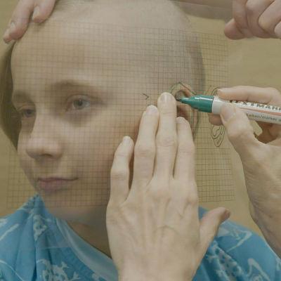 Plastiikkakirurgi Tiia Pihlamaa tekee Jamille uuden korvan.