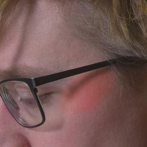 Miehen poski punoittaa silmälasien alla.