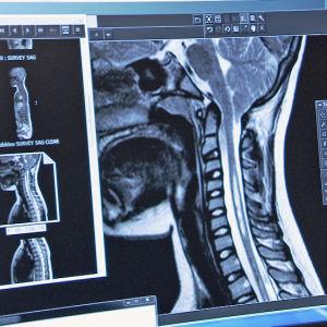 Chiari-potilaan röntgenkuva
