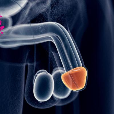 en röntgenbild på ett ollon