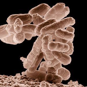 E-coli bakteeri, johon ESBL voi tarttua