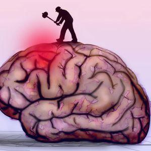 Kuvassa aivot, jota pieni mies moukaroi - kertoo stressin vaikutuksesta aivoihin.