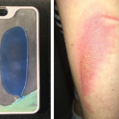 iPhone glitter kuori vamma palovamma