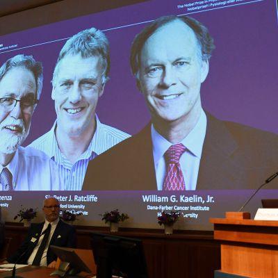 Nobelin lääketieteen palkinnon voittaja ilmoitetaan