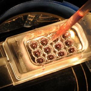 Embryon vid en klinik i Lepzig 2011