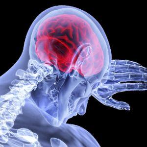 Läpivalaistu hahmo suojaa päätään. Aivot näkyvät punaisena.