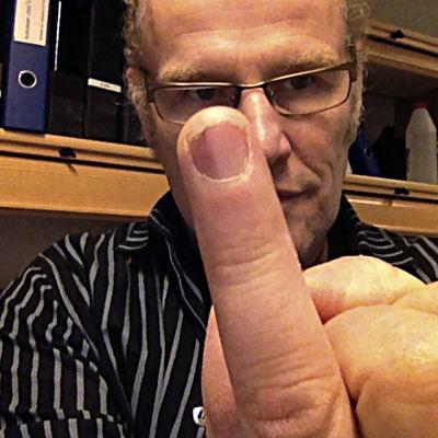 Stefan Paavola med friskt finger