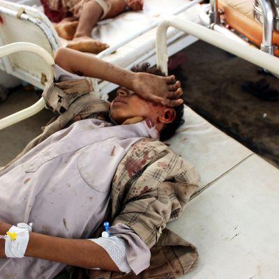 Iskussa haavoittunut lapsi sairaalassa Jemenissä 9. elokuuta.