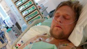 Mikael Kock ligger i en säng med slangar i kroppen.