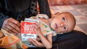 En undernärd bebis får  näringsrik nötpasta.