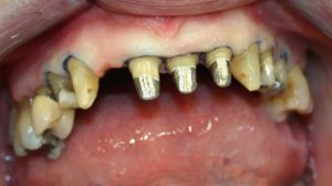 Tandingrepp