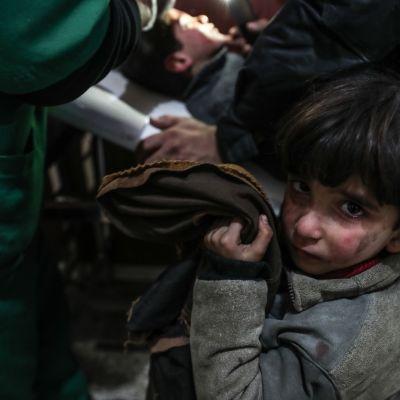 Tyttö loukkaantuneen veljensa vieressä, joka on saamassa ensiapua sairaalassa pommitusten jälkeen Doumanin kaupungissa, Itä-Ghoutassa.