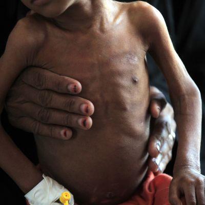 Äiti kannattelee aliravittua lastaan sanaalaisessa sairaalassa Jemenissä lokakuun alussa.