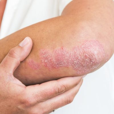 Psoriaasiksen aiheuttamaa ihomuutosta kyynärpään alueella.