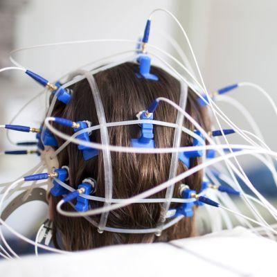 Aivosähkökäyrätutkimus