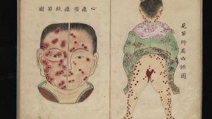 Japanska illustrationer från 1700-talet av smittkoppor