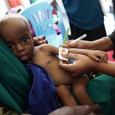 Somalia kuivuus nälkä nälänhätä