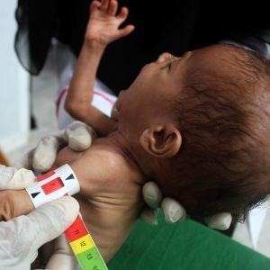 Ett undernärt barn får vård på en hälsocentral i Yemen.