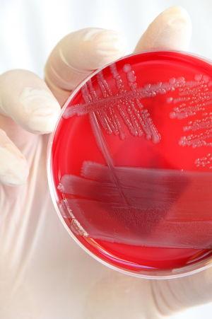 EHEC-bakteereja petrimaljassa