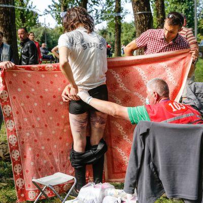 Lääkäri hoitaa miestä jonka sääret ovat mustelmilla.