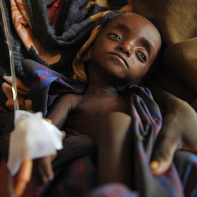 Ett svårt undernärt barn i Somalia år 2011.