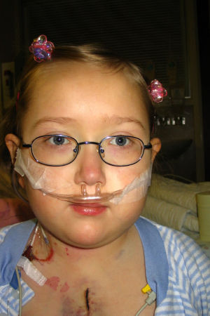 Ett barn med glasögon och toffsar i håret. Hon har ett stort ärr som går över bröstkorgen och syrgasslang i näsan.